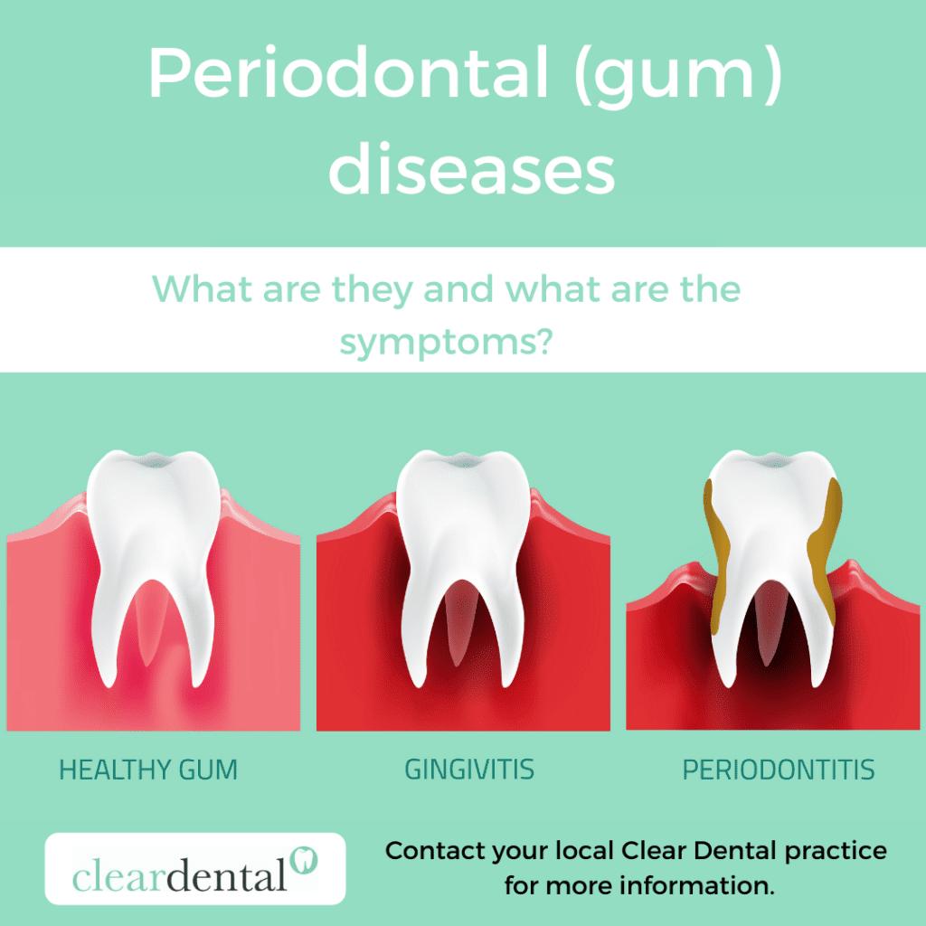 Periodontal (gum) diseases