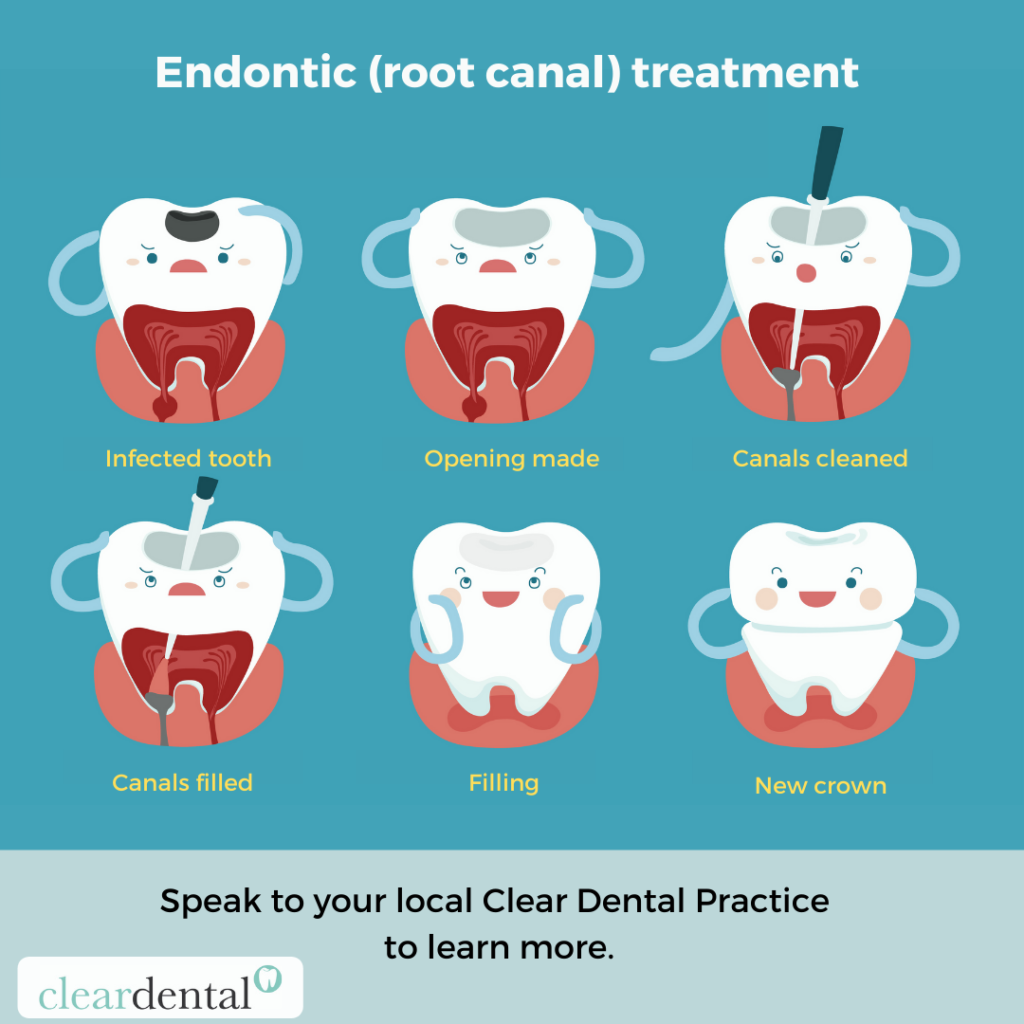 Endodontic (root canal) treatment
